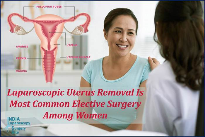 Laparoscopic Uterus Removal Is Most Common Elective Surgery Among Women.png